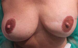 Dermopigmentazione paramedicale seno sinistro post intervento. Rosy Di Dato Dermopigmentista