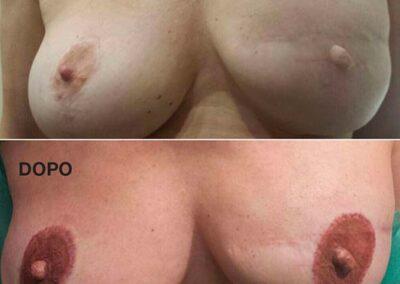 Dermopigmentazione Paramedicale Trattamento Cicatrcie Seno Post Intervento. Rosy Di Dato Dermopigmentista