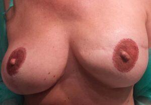 Dermopigmentazione paramedicale seno sinistro cicatrice post intervento. Rosy Di Dato Dermopigmentista