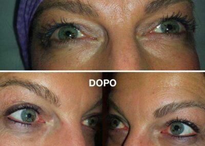 Eyelyner Infraccigliare Superiore Inferiore Dermopigmentazione Estetica Visagistica Rosy Di Dato Dermopigmentista