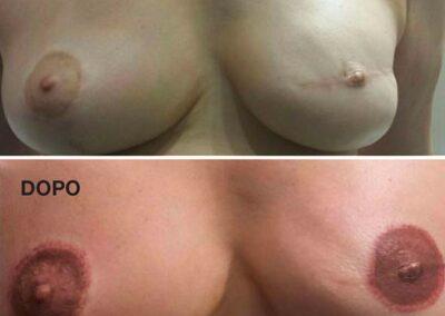 Dermopigmentazione Paramedicale Trattamento Cicatrcie Seno Post Intervento e Ricostruzione Areola Mammaria. Rosy Di Dato Dermopigmentista