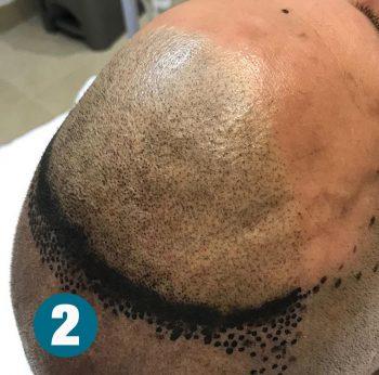 Tricopigmentazione Micrpigmentazione esecuzione Rosy Di Dato Dermopigmentista