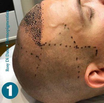 Tricopigmentazione Cuoio capelluto fase di progettazione Rosy Di Dato Dermopigmentista