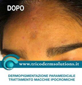 Dermopigmentazione Paramedicale - DOPO Trattamento macchia ipocromica su base genetica.