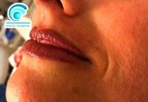 Trucco Semipermanente Labbra