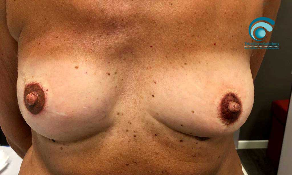 seno dopo trattamento dermopigmentazione