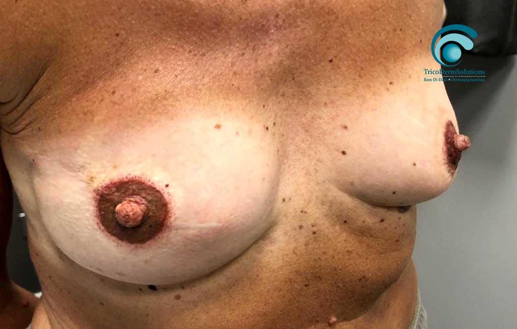 trattamento paramedicale seno dopo