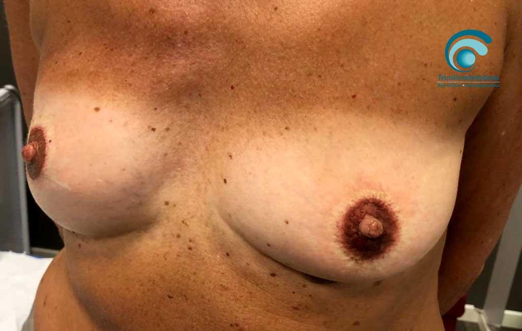 Dermopigmentazione seno post trattamento paramedicale