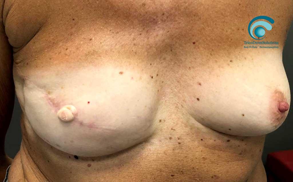 dermopigmentazione paramedicale seno prima