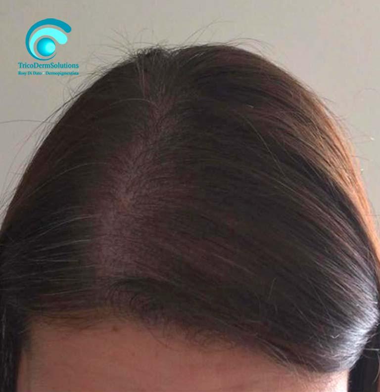 Alopecia Donna Dopo Tricopigmentazione | TRICODERMSOLUTIONS