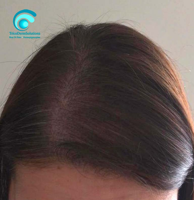 Alopecia Donna Dopo Tricopigmentazione   TRICODERMSOLUTIONS
