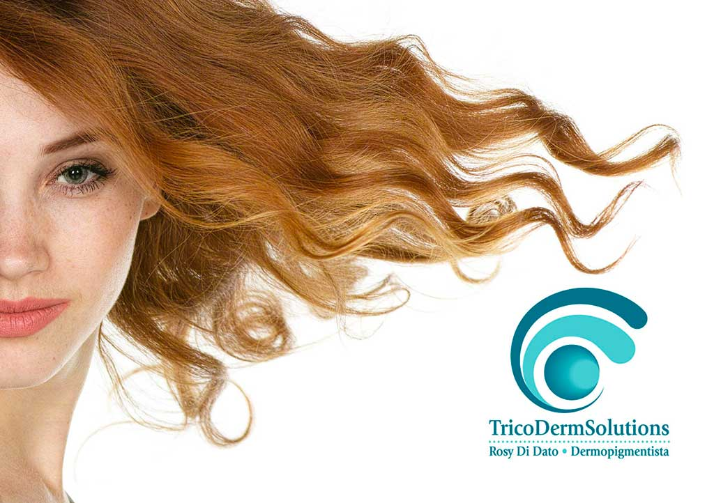 Alopecia Femminile | TRICODERMSOLUTIONS