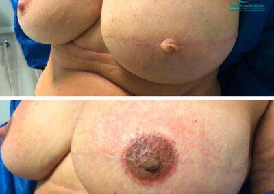 Dermopigmentazione Seno Post Mastectomia | TRICODERMSOLUTIONS