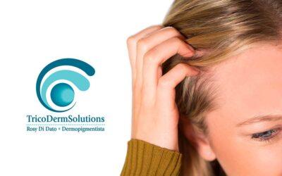 I Miei Lavori: Tricopigmentazione su Alopecia Areata