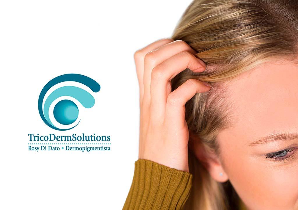 Alopecia e Tricopigmentazione | TRICODERMSOLUTIONS