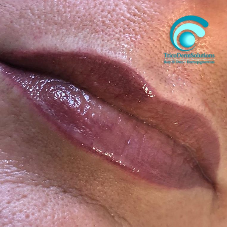 Labbra dopo Trattamento di Dermopigmentazione | TRICODERMSOLUTIONS