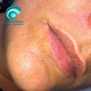 Labbra Prima del Trattamento trucco Semipermanente | TRICODERMSOLUTIONS
