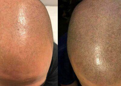 Tricopigmentazione effetto Rasato Prima e Dopo   TRICODERMSOLUTIONS