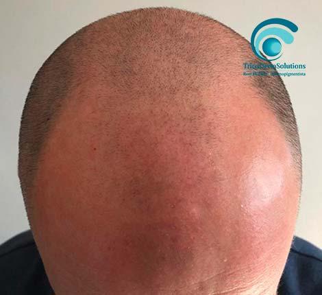 Tricopigmentazione effetto rasato prima   TRICODERMSOLUTIONS