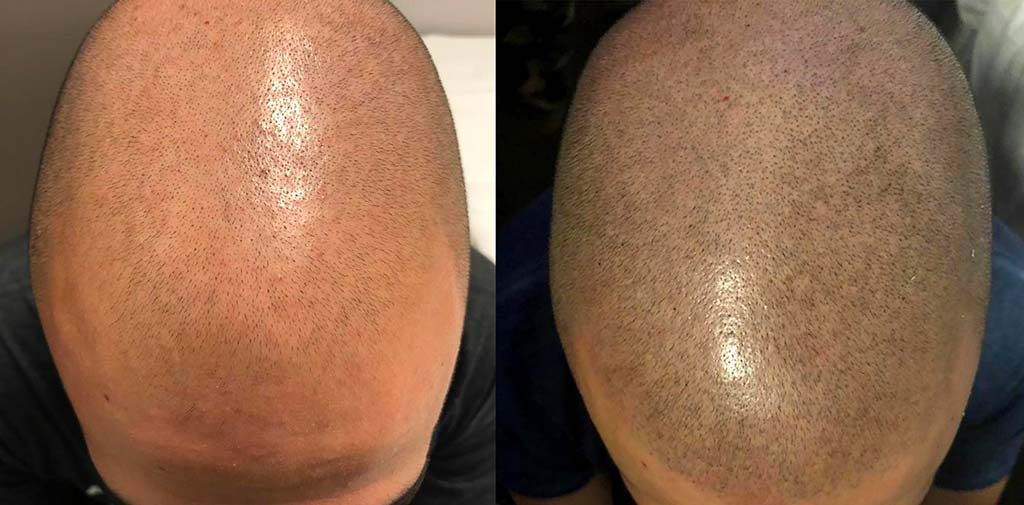 Tricopigmentazione effetto Rasato Prima e Dopo | TRICODERMSOLUTIONS