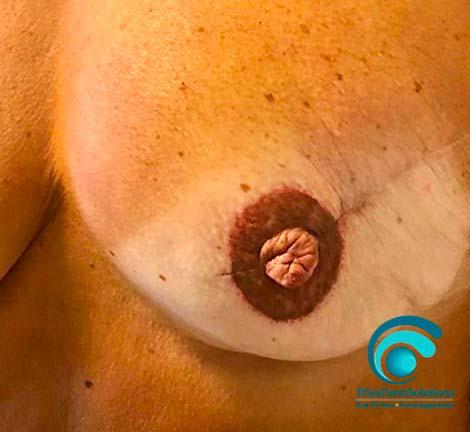Seno e Cicatrice dopo trattamento Dermopigmentazione Paramedicale | TRICODERMSOLUTIONS