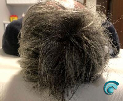 Infoltimento Alopecia Uomo | TRICODERMSOLUTIONS