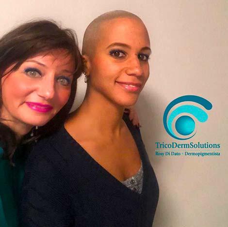 Tricopigmentazione nella Donna | TRICODERMSOLUTIONS