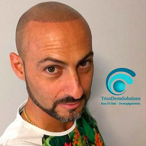 Tricopigmentazione uomo | TRICODERMSOLUTIONS