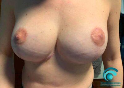 Dermopigmentazione Paramedicale Dopo il trattamento post intervento di mastoplastica riduttiva | TRICODERMSOLUTIONS