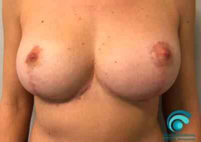 Dermopigmentazione Paramedicale prima del trattamento post intervento di mastoplastica riduttiva | TRICODERMSOLUTIONS