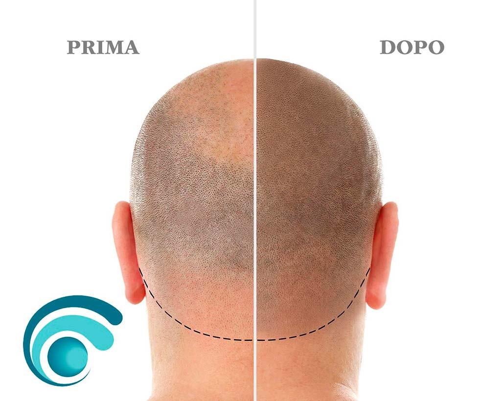 Tricopigmentazione soluzione alla perdita di capelli | TRICODERMSOLUTIONS