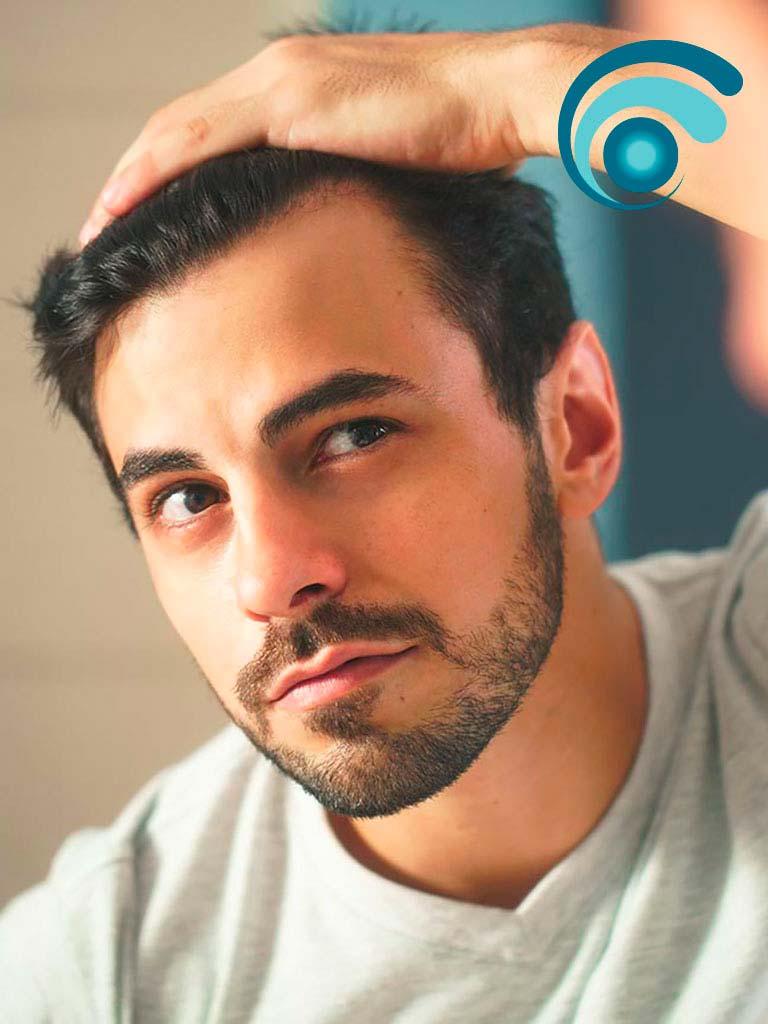Alopecia androgenetica o calvizie, caduta capelli | TRICODERMSOLUTIONS