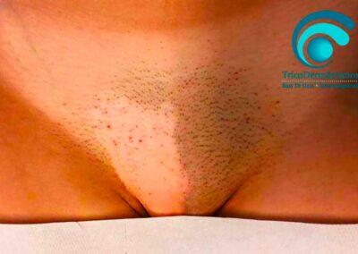 Trattamento con dermopigmentazione e tricopigmentazione in caso di vitiligine unilaterale al pube (prima del trattamento) | TRICODERMSOLUTIONS