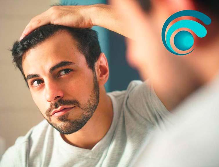 Alopecia androgenetica  o calvizie | TRICODERMSOLUTIONS