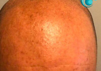Prima del trattamento di Tricopigmentazione | TRICODERMSOLUTIONS