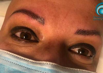 Ricostruzione Arcata Sopraccigliare Alopecia Universale