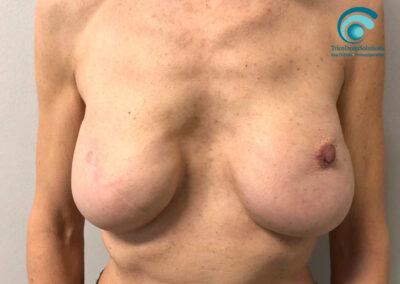 Complesso Areola capezzolo prima del trattamento di Dermopigmentazione Paramedicale | TRICODERMSOLUTIONS