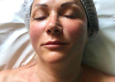 Lifting Antiage Viso e Collo dopo il Massaggio Manuale | TRICODERMSOLUTIONS