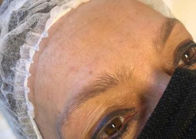 Prima del trattamento con trucco semipermanente alle sopracciglia | TRICODERMSOLUTIONS
