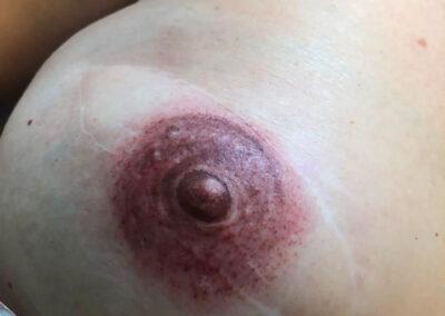 Trattamento di Dermopigmentazione Paramedicale per la Ricostruzione del Complesso Areola Capezzolo Post Mastectomia | TRICODERMSOLUTIONS