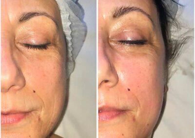 MANUAL LIFTING: il trattamento beauty ideale anti rughe, anti lassità anti età. Prima e dopo il trattamento   TRICODERMSOLUTIONS