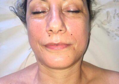 MANUAL LIFTING: il trattamento beauty ideale anti rughe, anti lassità anti età.