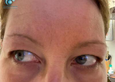 Dermopigmentazione Estetica Semipermanente: Sopracciglia Prima | TRICODERMSOLUTIONS