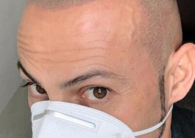 Ritocco Annuale, Dermopigmentazione Capelli | TRICODERMSOLUTIONS