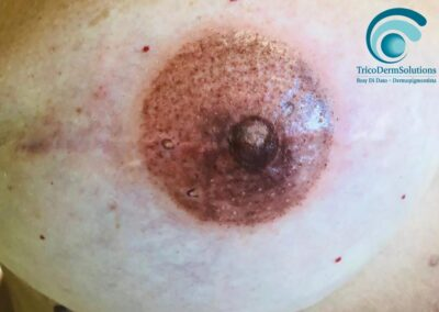 Dermopigmentazione Areola Mammaria in 3D Post Intervento Oncologico – Milano