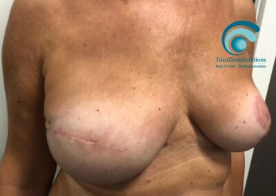 Complesso Areola Mammaria Prima del Trattamento di Dermopigmentazione Paramedicale   TRICODERMSOLUTIONS